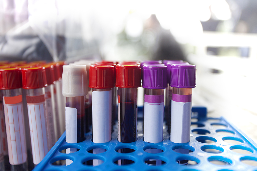Blood Test Can Show Early Signs of Alzheimer's